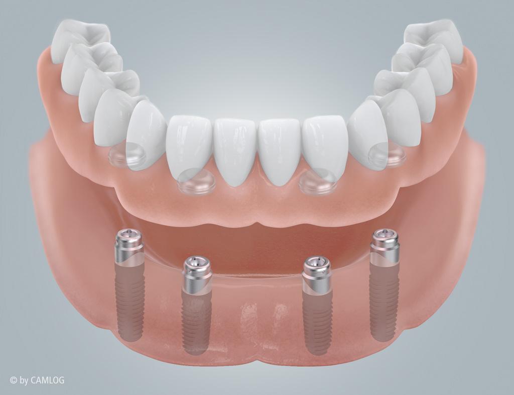 Implantat Bilder