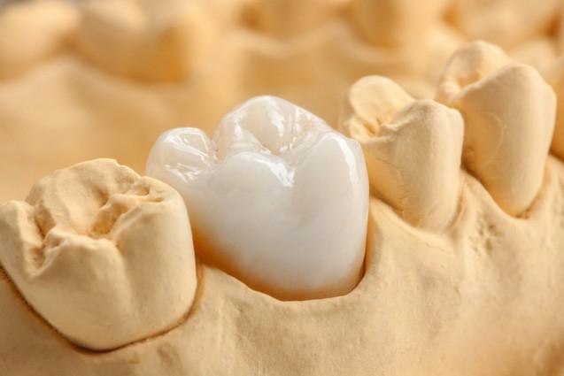 Festsitzender Zahnersatz mittels Kronen und Brücken