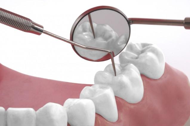 Parodontitisbehandlung und Mundhygiene