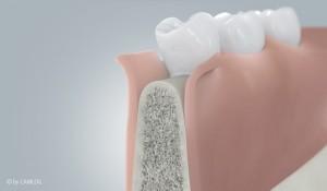 Zahnfleisch verdrängen