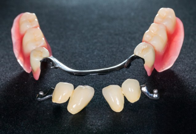 Abnehmbarer Zahnersatz mittels Prothesen
